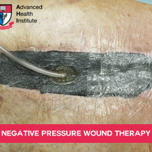 Negative Pressure Wound Therapy (NPWT) is a medical procedure in which a vacuum dressing is used to enhance and promote wound healing in acute, chronic and burn wounds. The therapy involves using a sealed wound dressing attached to a pump to create a negative pressure environment in the wound.